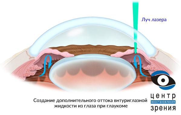Лазерная операция при глаукоме