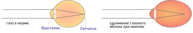 Лазерная коррекция зрения при сильной близорукости