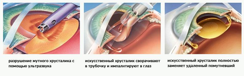 Удаление катаракты этапы