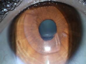 Бандажная лечебно-оптическая кератопластика