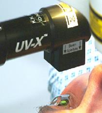 Лазерная коррекция близорукости в Москве: цены и отзывы на операции при близорукости - Центр восстановления зрения